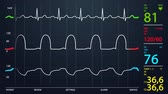 ecg : Animation of schematic Intensive Care Unit monitor showing normal values for vital signs, starting with cardiac frequency. Dark blue backgound.