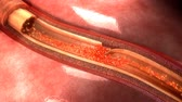 cholesterol plaque : Artery dissection Stock Footage