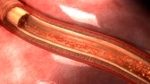 cholesterol plaque : Artery Static