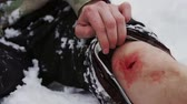caution : homme assis dans la neige blessé au genou close-up