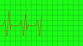 frequent : heartbeat lines animation - green screen effect
