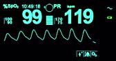 querido : electrocardiogram ecg in hospital surgery operating emergency room showing patient heart rate, health care medical Stock Footage
