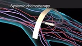 iv : Medical animation of the chemotherapy - systemic chemotherapy - Regional chemoth
