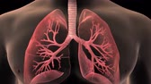 oxigênio : 3D animatied Bronchiolitis - Inflammation of the Bronchioles