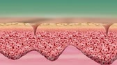 dermis : The skin is the outer skin of the skin. Other animal coverings such as. The adjective cutaneous means. Abstract