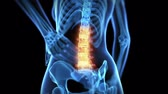 bederní : Medical animation - pain in the lower back