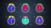 auditório : Brain MRT scan. 6 views on one screen. 4k medical colorful background Stock Footage