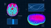 ct : Futuristic medical interface. Brain MRT scan. Full HD medical colorful background Stock Footage