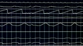 vital signs : Running white lines on a black screen