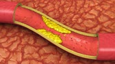 лекарство : Clogged Artery Animation (HD). Clogged artery shown with a cut out section displaying fat deposits and forming a clot. High quality rendering with original textures with great detail.