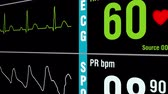 vital signs : Patient monitor displays vital signs ECG electrocardiogram EKG, oxygen saturation SPO2 and respiration. Medical examination. 4K UHD video footage animation.