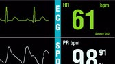 cardiac cycle : Patient display with vital signs ECG electrocardiogram, oxygen saturation SPO2 and respiration. Medical examination zoom out shot.
