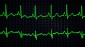 ecg : An EKG translates electrical activity of a heart into line tracings on a digital display.