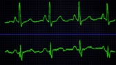 ecg : An electrocardiogram displays the electrical activity of a strong regular heartbeat. Stock Footage