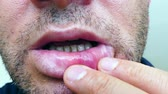 ferimento : wound on the lip, wound on the lip, formation of aphthae on the lip.
