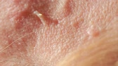 growth hormone : spherical cystic acne on the skin. Close-up. The concept of dermatology Stock Footage