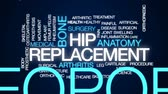 replacement : Hip replacement animated word cloud, text design animation. Stock Footage