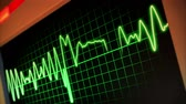 nurse : A fictional hospital computer screen monitoring a human heart. Stock Footage
