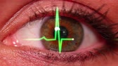optometria : An eyeball with an EKG wave.