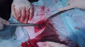 surgical scissors : The doctors hands cut the artery with scissors