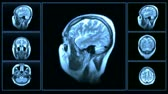 healthcare : MRI brain scan