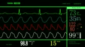 ecg : Looping animation of a medical hospital monitor of normal vital signs, HD 1080 Stock Footage