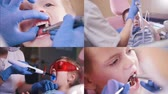 bites lip : 4 in 1 - girl and boy babies at the dentist room. close up mouth Stock Footage