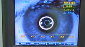 измерительный : A retinal cameras screen checking. Стоковые видеозаписи