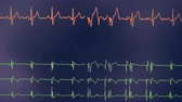 oscilloscope : Real cardiogram. Cardiograph oscilloscope show heart beat rate on a screen.