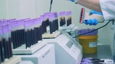 штрих код : A woman scans bar codes on blood samples, close up. Laboratory worker uses special device to scan barcodes.