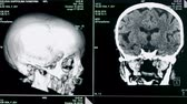 scanner : Skull model rotates on a screen, close up. Medical machine creates a model of a patients skull. Stock Footage