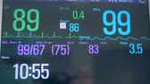 intensive : Close up of various figures and indexes on a medical screen. ECG monitor. Stock Footage