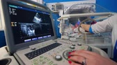 intensivpflege : Doctor uses screening tool to look at a newborns heart.