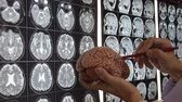 Doctor holding brain model and teaching anatomy on MRI imaging