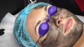 elastin : Beautician laser removes old skin with carbon fiber layer. Processing of forehead area. Carbon peeling.