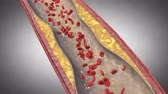 cholesterol plaque : vascular narrowing animation