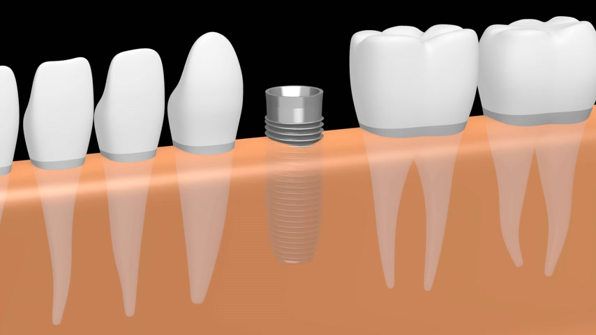 насаждение : 3D dental implant tooth implant animation - on black background. Стоковые видеозаписи