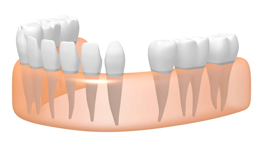 насаждение : 3D dental implant tooth implant animation - on white background. Стоковые видеозаписи