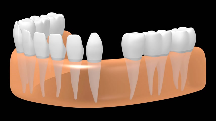 implantation : 3D dental implant tooth implant animation - on black background. Stock Footage