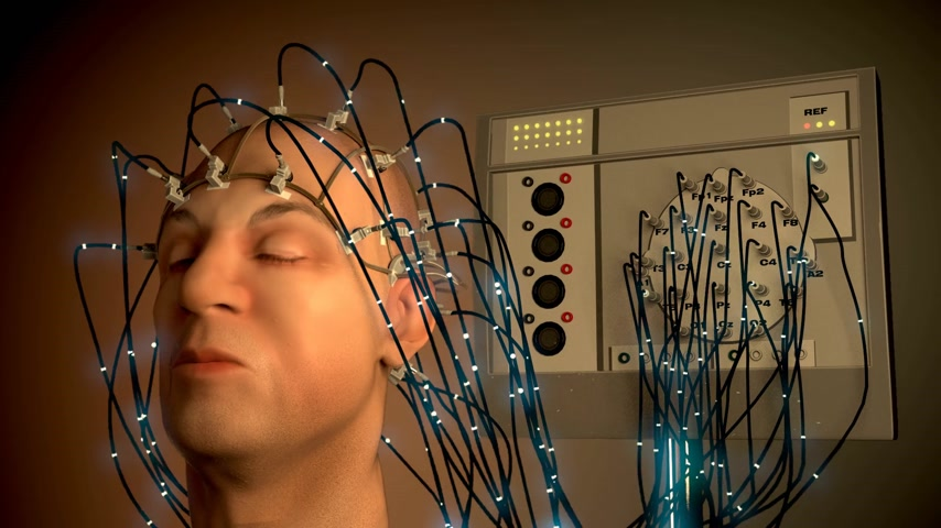 consciousness : Man wired to an EEG machine or electroencephalograph which produces a graphical record of electrical activity of the brain Stock Footage