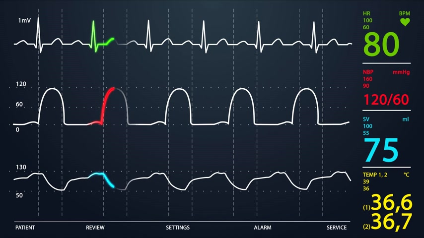 szpital : Animation of schematic Intensive Care Unit monitor showing normal values for vital signs, starting with cardiac frequency. Dark blue backgound.