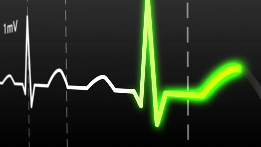 vital signs : Animation of schematic Intensive Care Unit monitor showing normal values for vital signs, starting with cardiac frequency. Dark background.