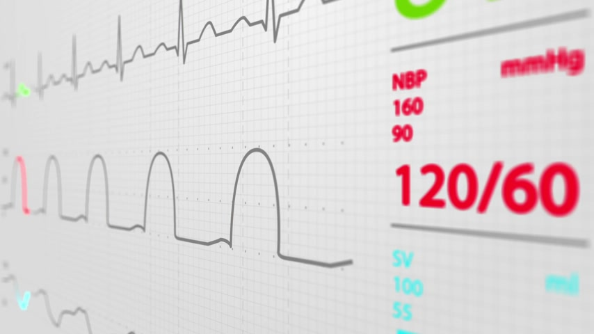 vital signs : Animation of schematic Intensive Care Unit monitor showing normal values for vital signs. Focused on blood pressure diagram. White background. Stock Footage