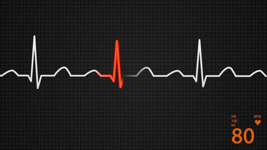 kardiyoloji : Animation of schematic diagram of normal sinus rhythm for a human heart as seen on ECG. Orange highlights on dark background. Stok Video