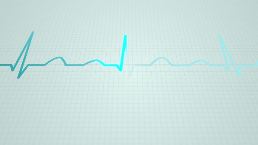 egészségügy és az orvostudomány : Animation of schematic diagram of normal sinus rhythm for a human heart as seen on ECG. Blue highlights on bright background.