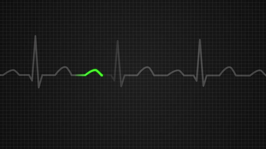 puls : Animation of schematic diagram showing values for a death seen on ECG screen. Orange highlights on dark background
