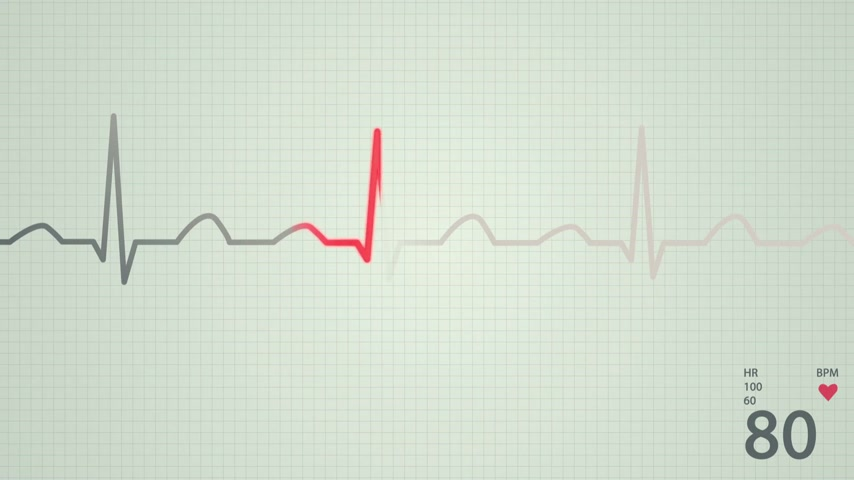 pulso : Animation of schematic diagram of normal sinus rhythm for a human heart as seen on ECG. Red highlights on bright background.