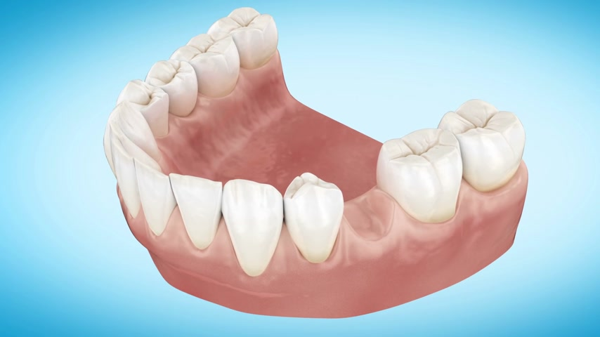 dentysta : Beautiful Tooth implant installation process. Close Up 3d Animation. Full HD 1920x1080. Wideo