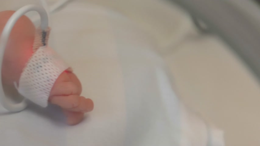 neonatology : smal child in incubator, hospital Neonatology Cared for by a doctor neonatologist and nurse. Medical devices cardiogram cannula tube.