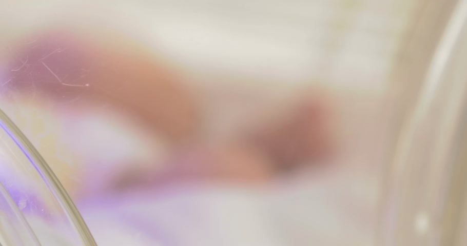 neonatology : 4K,    Severely ill newborn in incubator,intensive hospital therapy:ICU,CCU,ICU,ITU.A tiny baby in diapers,moving his fingers,foot.It is illuminated by a special lamp.    Closeup, Fade in out Stock Footage